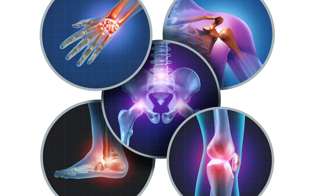 Tackling Joint Pain